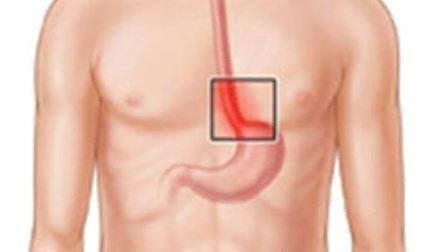 Воспаление пищевода, эзофагит