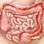 Симптомы кистозного пневматоза кишечника, лечение