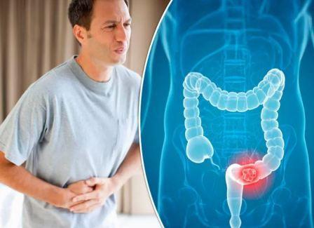 Домашние средства лечения рака толстого кишечника
