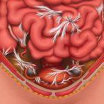 Cпайки в кишечнике, симптомы и лечение, диагностика
