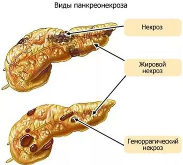 Симптомы некроза поджелудочной железы, лечение