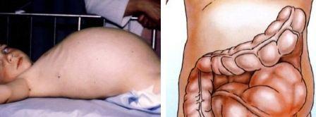 Болезнь Гиршпрунга у детей и новорожденных
