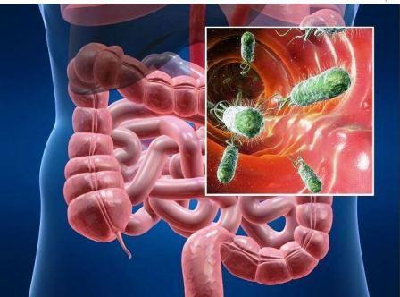 Виды распространенных кишечных инфекций, клиническая картина