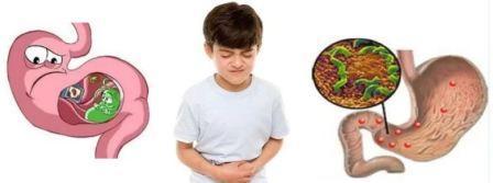 Формы и лечение гастродуоденита у взрослых и детей