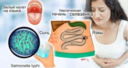 Симптомы и признаки брюшного тифа, лечение