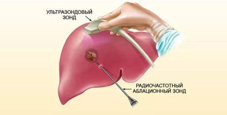 Причины развития и лечение гемохроматоза печени