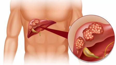 Формы, симптомы и лечение холестероза