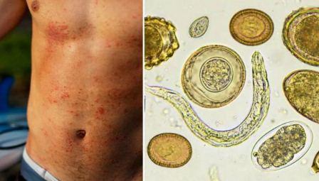 Что такое дифиллоботриоз, симптомы и лечение